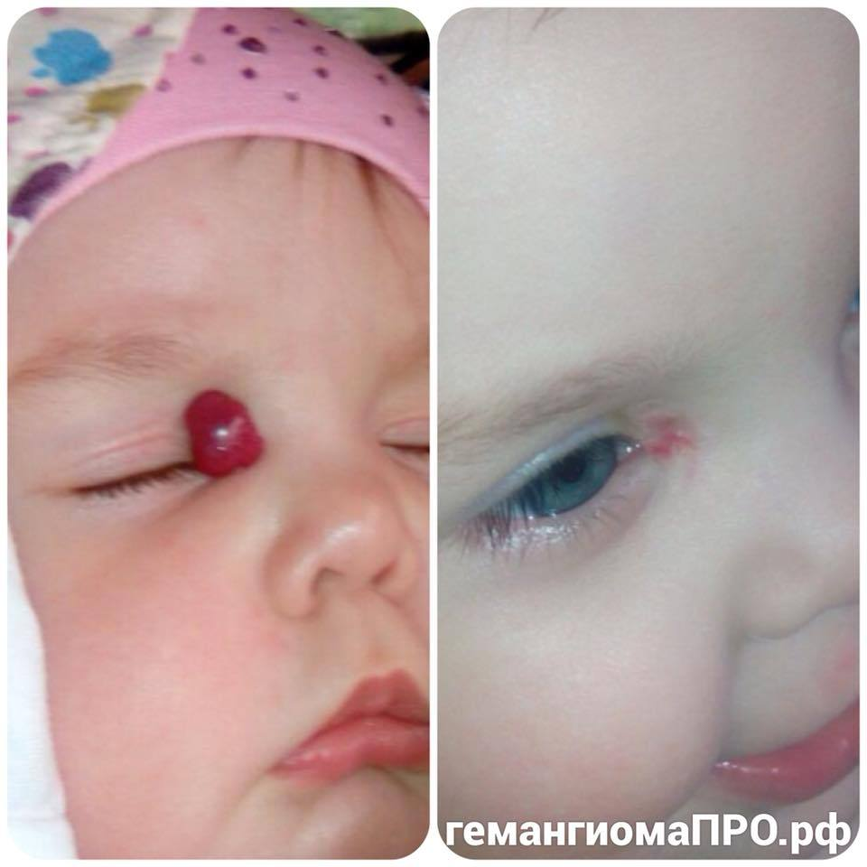 Показания к операции у ребенка с воронкообразной грудной клеткой
