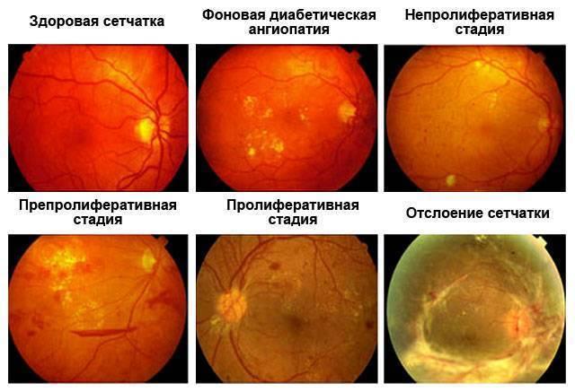 Ангиопатия сетчатки (((( - ангиопатия сетчатки глаза у новорожденного - запись пользователя aliya (alidar0801) в сообществе здоровье новорожденных в категории неврология - babyblog.ru