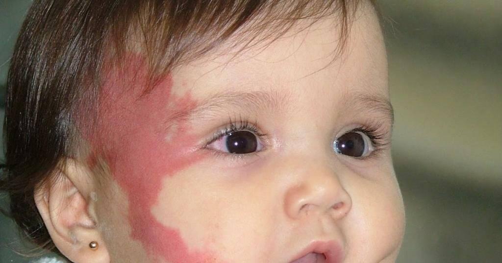 Красное пятно на затылке у младенца