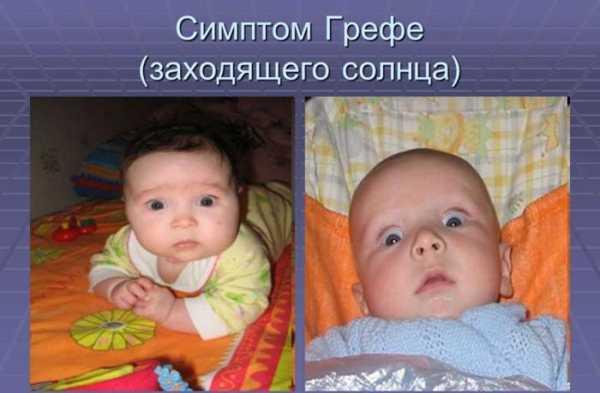 Закатывает глаза вниз( - запись пользователя margo xoroshilova (margoxoroshilova) в сообществе здоровье новорожденных в категории неврология - babyblog.ru