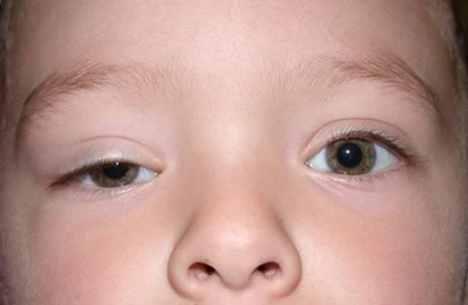 Почему грудничок может спать с открытыми глазами, диагностика и методы лечения
