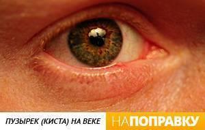 На верхнем веке глаза появились белые. вскочил прыщ на глазу, во рту - что делать