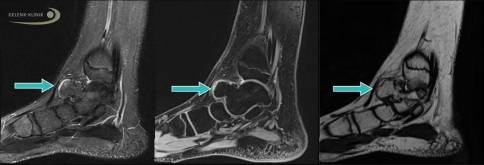 После высокой температуры у ребенка начали болеть ноги – почему так происходит?