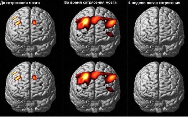 Симптомы сотрясения мозга у ребенка и чем оно опасно. первая помощь, лечение