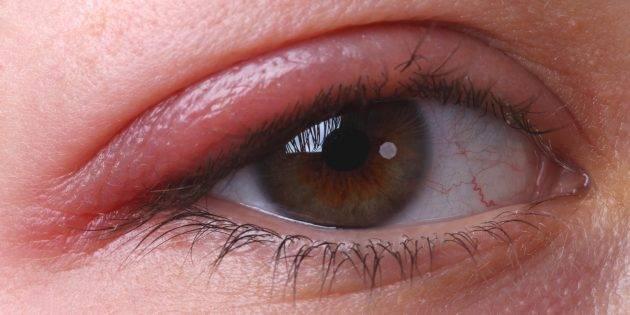 Почему ребенок пучит глазки