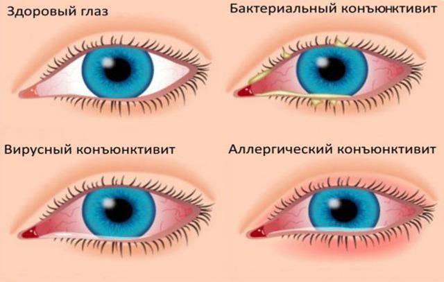 Что делать, если лопнул капилляр в глазу у ребенка