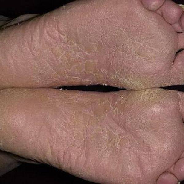 Облазит кожа на ступнях у ребенка 6 лет