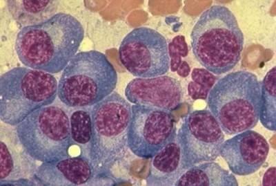 Плазматические клетки в крови у ребенка