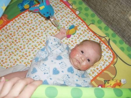 Как отличить цветение новорожденных от аллергии? - запись пользователя sonya (id2024621) в сообществе здоровье новорожденных в категории высыпания на коже - babyblog.ru