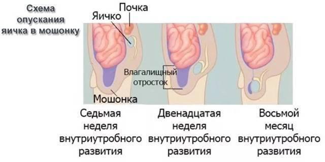 Гидроцеле (водянка яичка) у детей разного возраста: причины, лечение, операция, последствия, фото