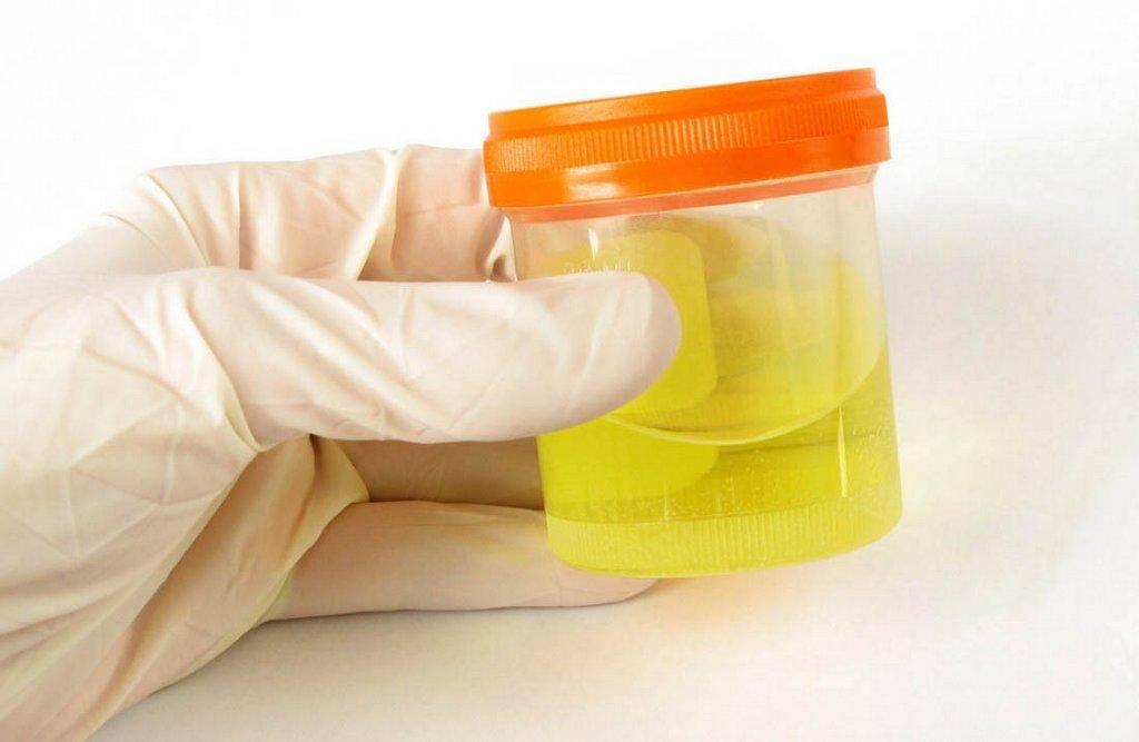 Анализ мочи по сулковичу у грудничка что показывает, как собрать урину