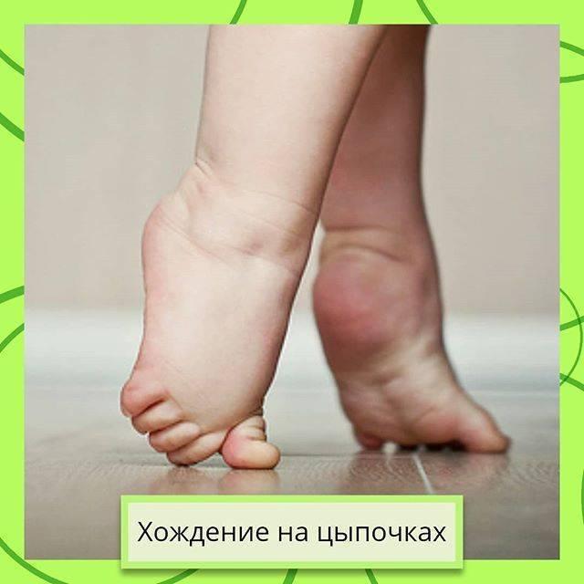 Нам полтора года и иногда ходит на носочках - запись пользователя натали (cavyshka) в сообществе детские болезни от года до трех в категории неврология - babyblog.ru