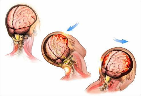 Сотрясение мозга у ребенка — симптомы и признаки
