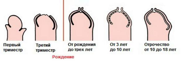Проблемы у мальчика с писюном. срочно нужна помощь!!! - когда у мальчика должна открыться головка - запись пользователя анна (vitos62rus) в сообществе здоровье - от трех до шести лет в категории нужна помощь! - babyblog.ru