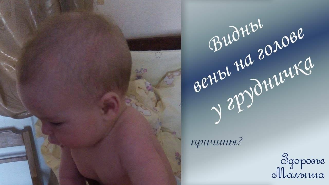 Синяя вена под одним глазом как синяк( - запись пользователя света перевалова (perevalova40) в сообществе здоровье новорожденных в категории разное - babyblog.ru