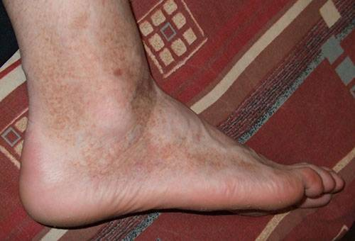 Сыпь на ногах у подростка причины