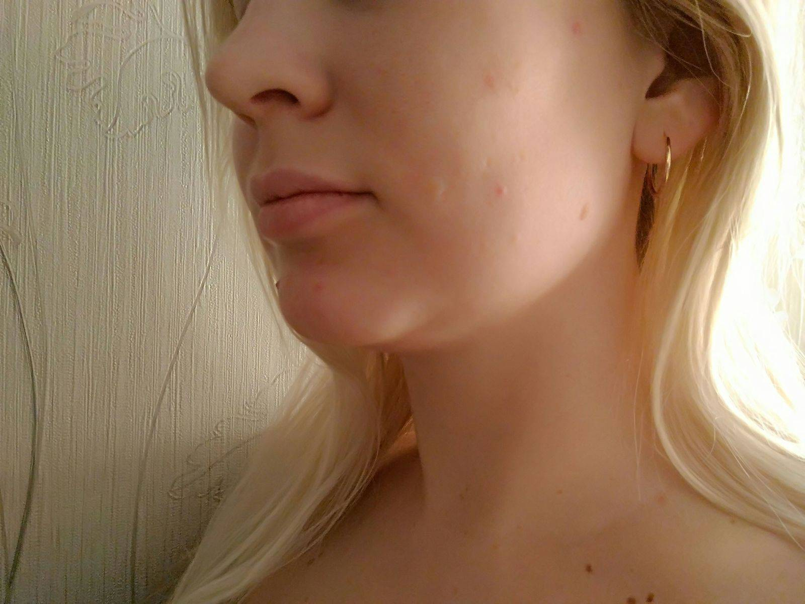 Цианоз носогубного треугольника фото