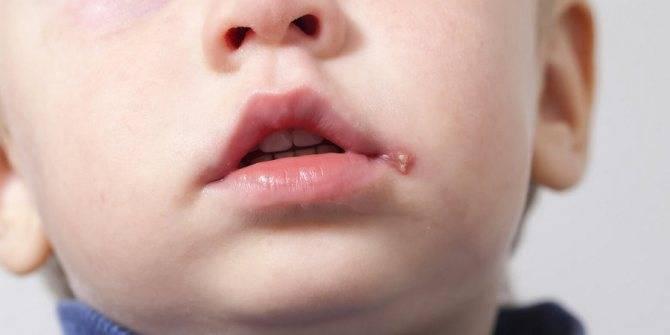 Почему у ребенка заеды в уголках рта. как лечить