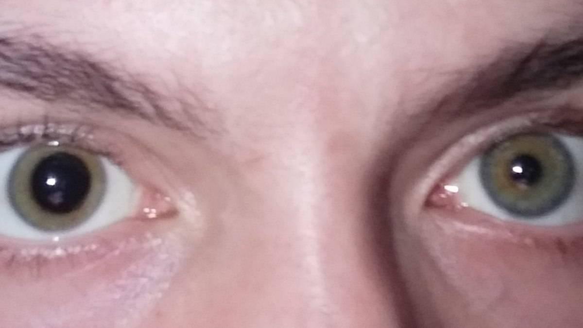 Что делать, если младенец закатывает глаза?