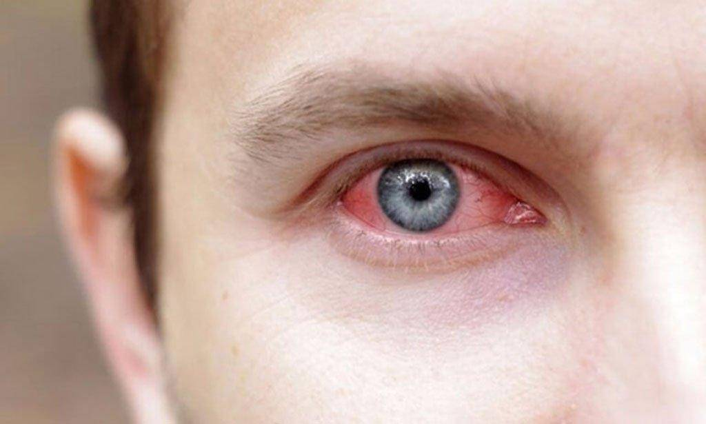 Ангиопатия сетчатки глаза у ребенка – что это такое и как лечится?