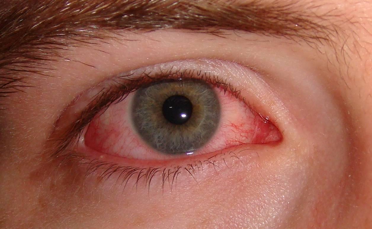 Когда меняются глаза у новорожденного, каким будет цвет глаз? научные данные о том, когда меняются глаза у новорожденных