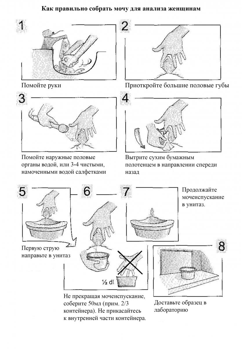 Что такое копрограмма или копрология кала у детей – как правильно сдавать, собирать и хранить кал для анализа
