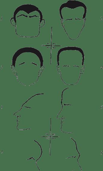 Расхождение швов черепа - расхождение швов черепа у грудничка фото - запись пользователя viktoria (id1414543) в сообществе здоровье новорожденных в категории неврология - babyblog.ru