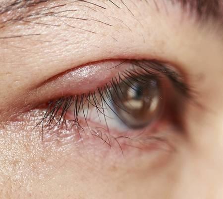 Красные круги под глазами у ребенка. причины красноты и припухлости. комаровский