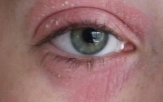 5 основных причин, по которым появляются мешки под глазами у ребенка