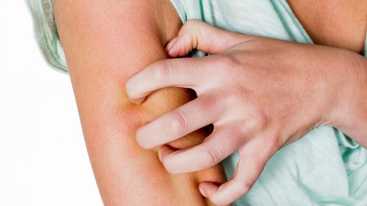 Аллергия на ногах у младенца: причины и лечение