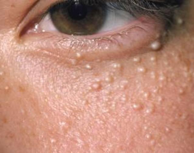 Белые точки на носу у новорожденного. почему у новорожденного белые точки на носу? когда проходят белые точки на носу у новорожденного?
