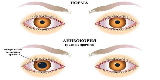 Когда зрачок не реагирует на свет: почему возникает анизокория у ребенка и опасно ли это?