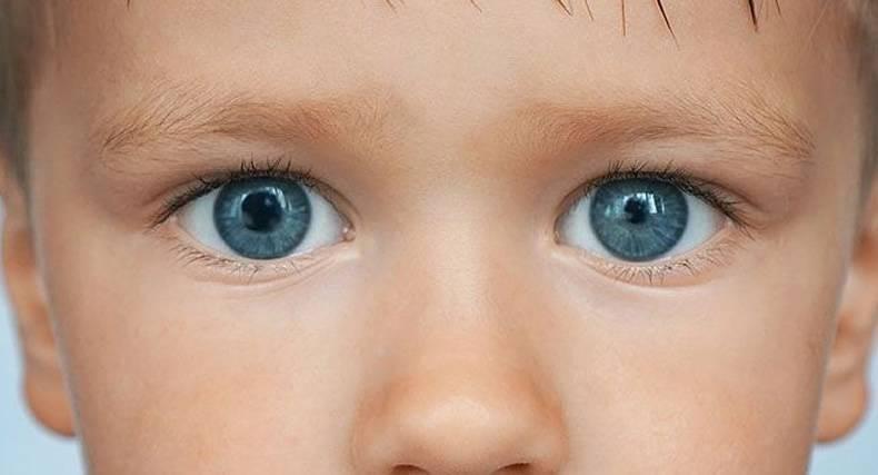 Зрачки расширены у ребенка причины (18 фото): что это значит, почему постоянно большие зрачки у грудничка, по мнению доктора комаровского