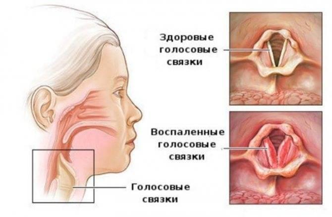 Красные точки в горле у ребенка