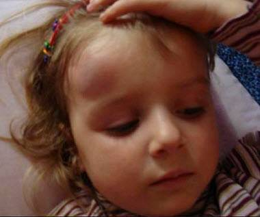Наш опыт падения и последствия!, - запись пользователя дилара (dilaro4ka) в сообществе здоровье новорожденных в категории падение малыша - babyblog.ru
