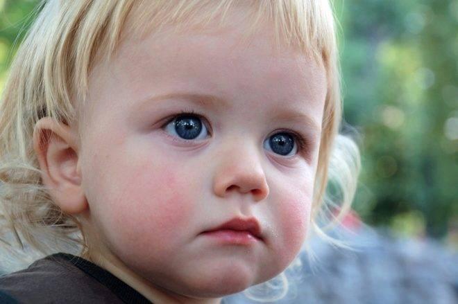 Красные щечки((((что делать..   красные щечки у ребенка что делать