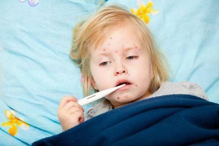 Сыпь на шее у ребенка (28 фото):  причины сыпи сзади - пояснения появления красной сыпи