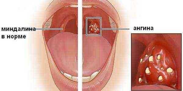 Что делать, если у грудного ребенка красное горло