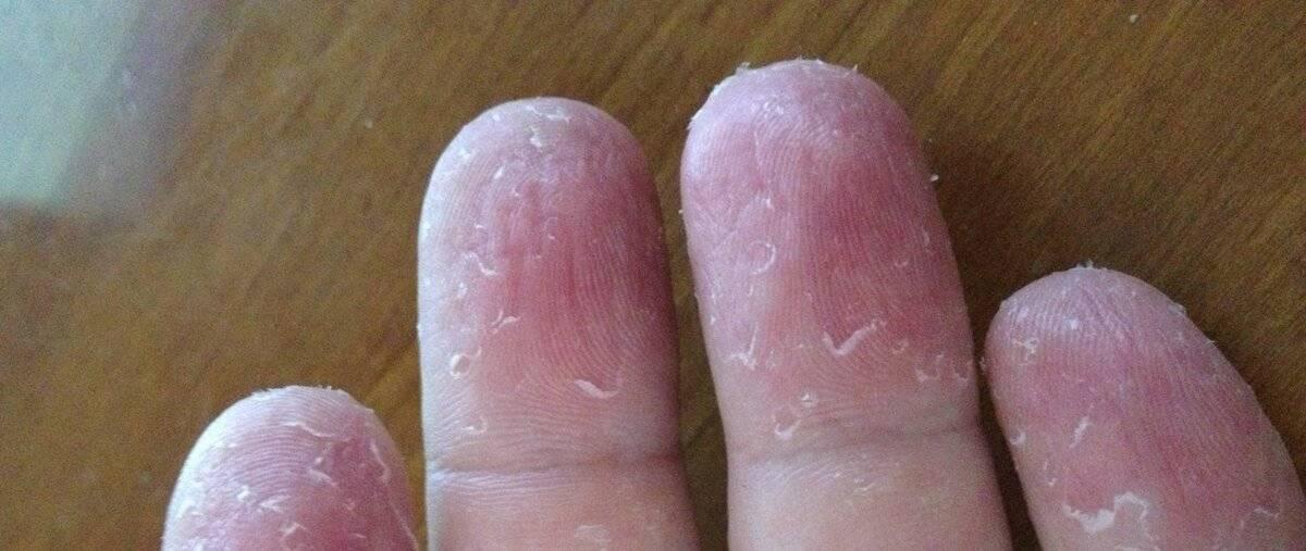 Почему облазит кожа на пальцах взрослых и детей