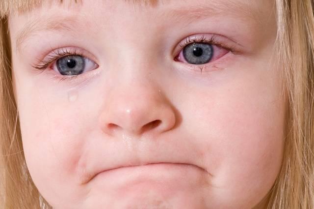 Что значит: красное пятно на глазу у ребенка или взрослого