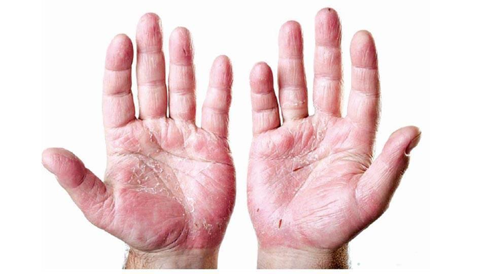 Почему трескаются и шелушатся подушечки пальцев рук: основные причины, лечение
