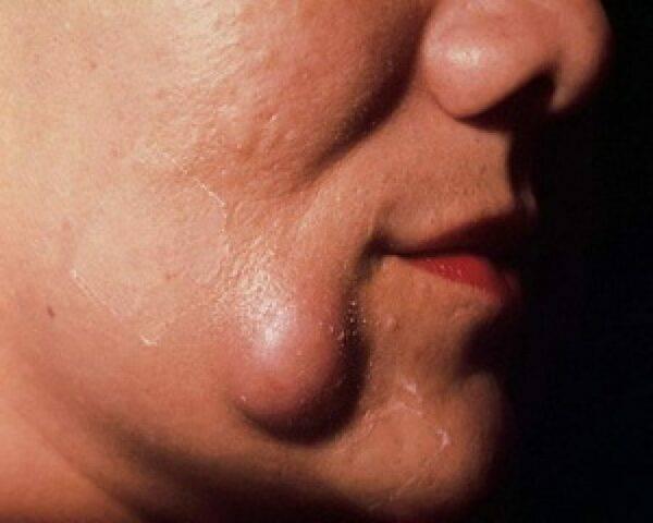 Жировик на лице у ребенка, новорожденного. причины жировиков, липом на шее, голове, соске, под глазом у ребенка