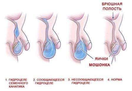 Лечение водянки яичек у новорожденных мальчиков