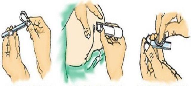 Анализы на гельминтов  – особенности сдачи и расшифровка результатов анализа кала на яйца глист, соскоба на энтеробиоз и анализ крови по ифа