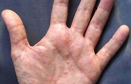 Сыпь на ладонях и ступнях у ребенка (34 фото): что делать, если высокая температура, чешется сыпь на подошве
