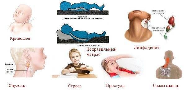 Шишка на шее под кожей справа, слева или сзади у взрослых и детей