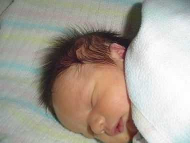 Лануго у новорожденных
