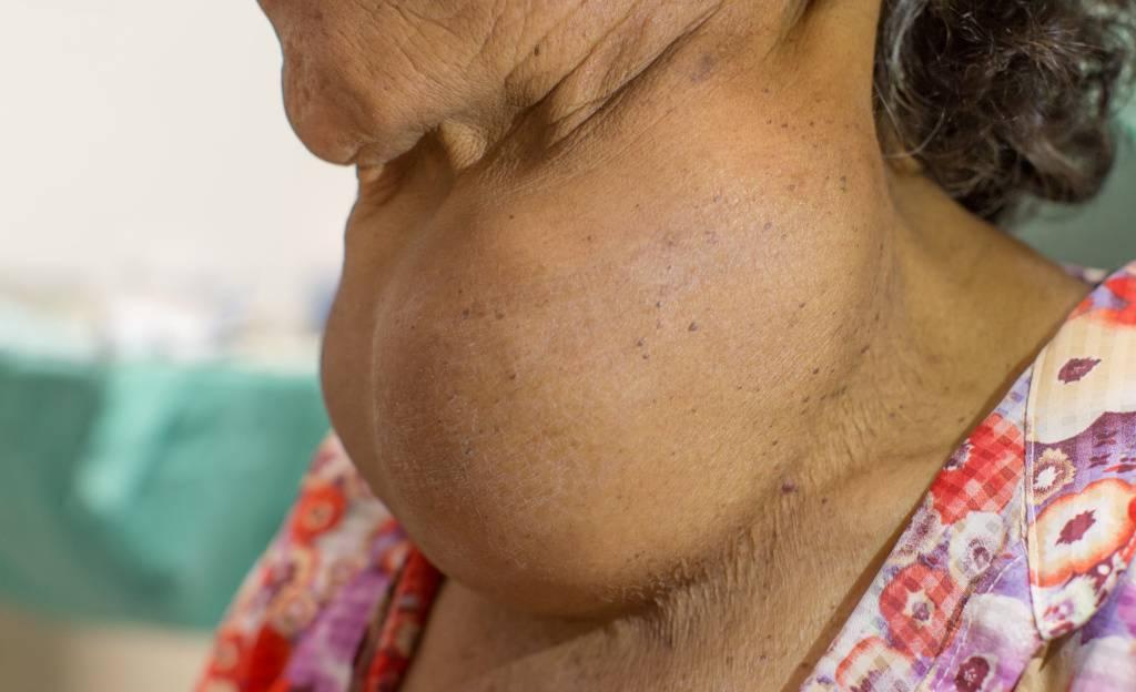 Причины появления сыпи в горле у ребёнка и особенности лечения