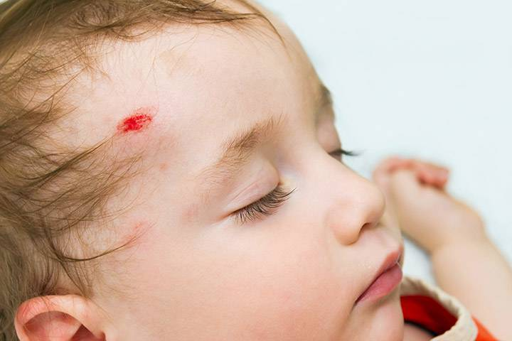 Сотрясение мозга у ребенка: как определить в домашних условиях, что делать и чем опасно?