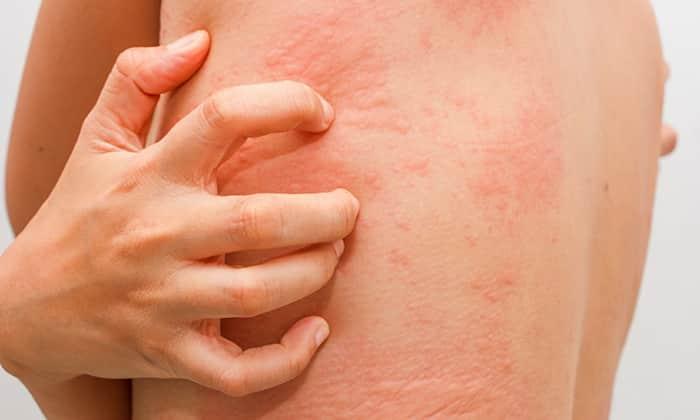 Заболевания, вызывающие появление сыпи на спине у ребенка